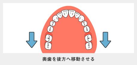 奥歯を後方へ移動させる