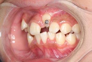埋伏歯の牽引